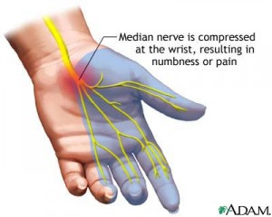 One Click Away From Carpal Tunnel syndrome?
