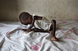 Emaciated Children Signal Crisis In Southern Sudan