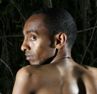 Palm Harbor organization helps Ethiopian man with surgery for severe scoliosis
